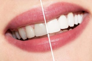 Teeth Whitening Promotion in West New York