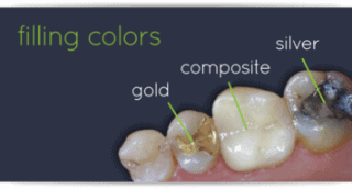 Composite Fillings in West New York
