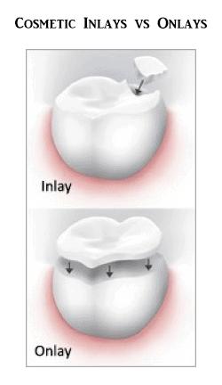 Inlay / Onlay at Hudson Dental Center West New York