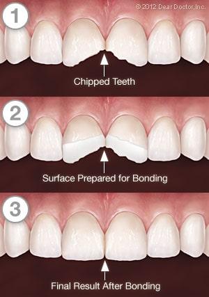 Dental Bonding in West New York