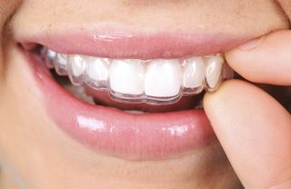 Invisalign West New York