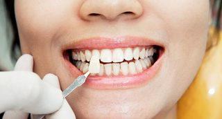 Dental Lumineers West New York