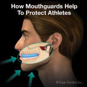 Athletic Mouthguard - Dentist in West New York