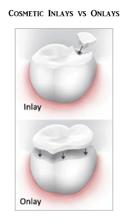 Inlay / Onlay at Hudson Dental Center West New York