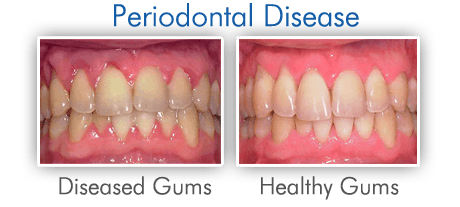 Periodontal Disease - West New York