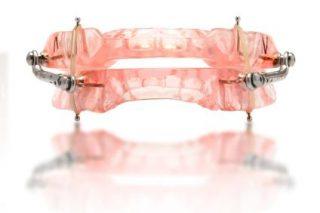 mandibular advancement device