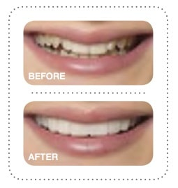 Snap On Smile in West New York