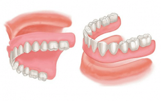 Dentures at Hudson Dental Center West New York