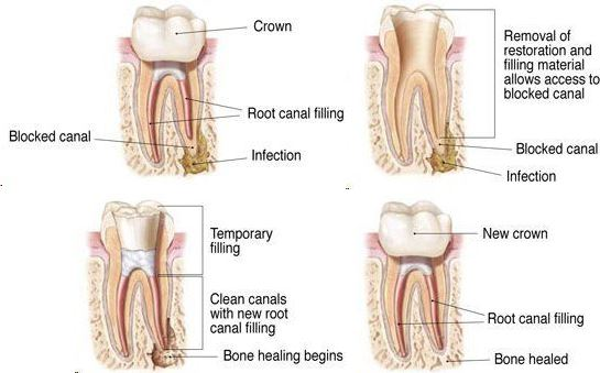 Root Canal Retreatment (Endodontist Retreatment)