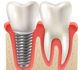 Dental Implants in West New York